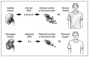 Anemia-Kidney